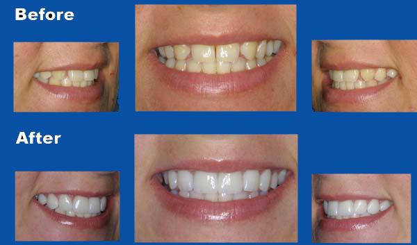 Porcelain Veneers Family Dentistry Aesthetics Inc In